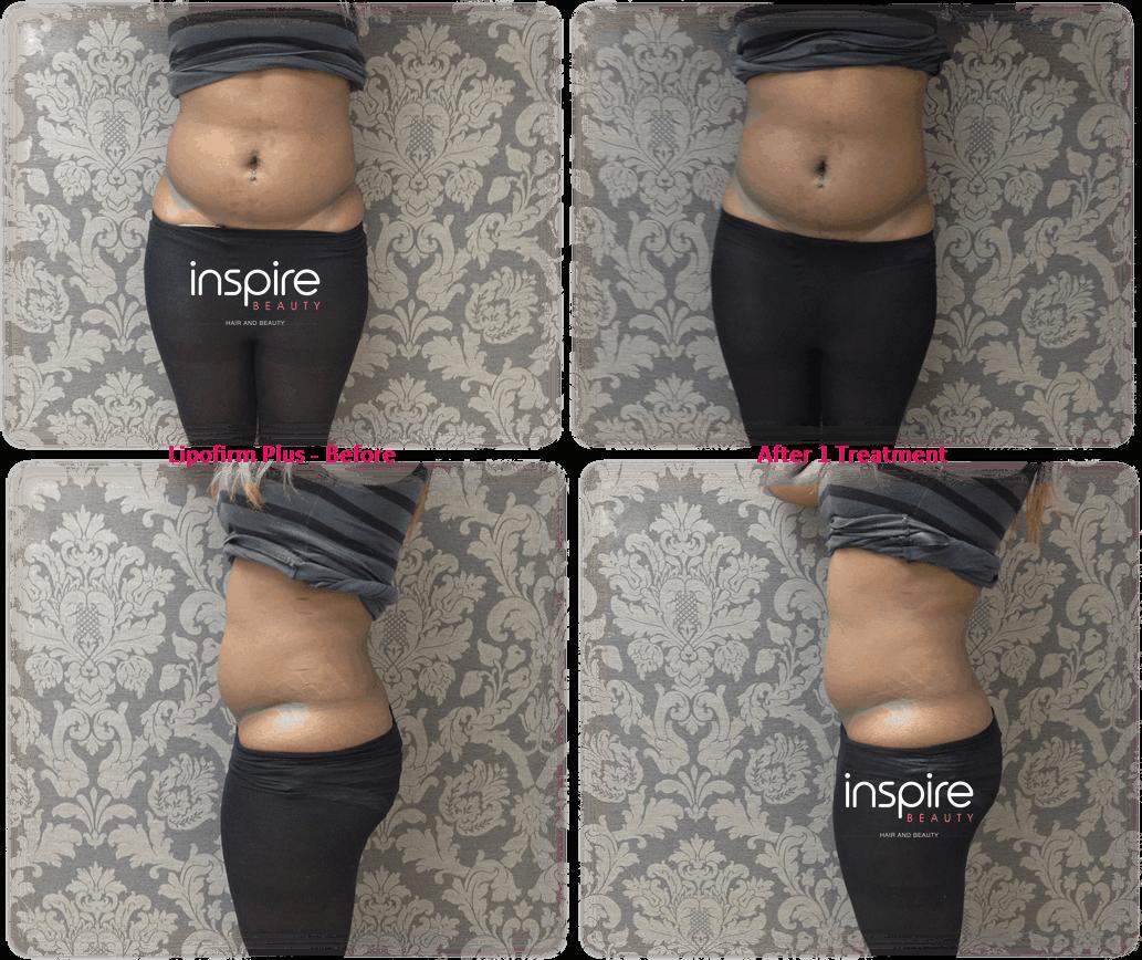 LipoFirm PLUS – Non-Invasive Alternative to Liposuction