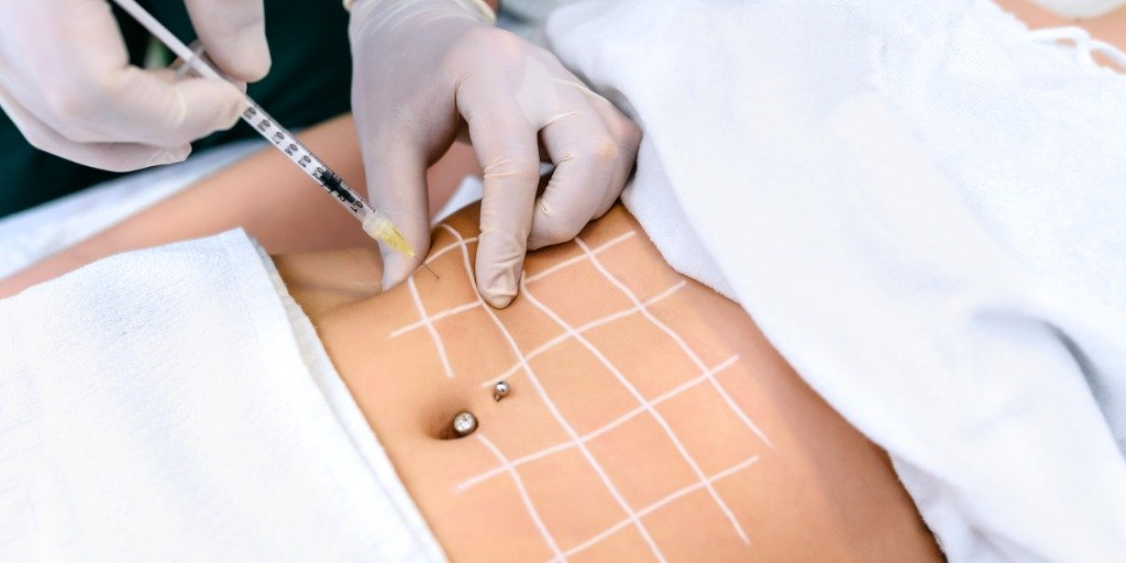 What are Fat Dissolving Injections, and why might you need them?